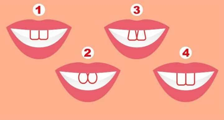 What the shape of your teeth says about you