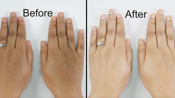 How to get rid of dark knuckles naturally