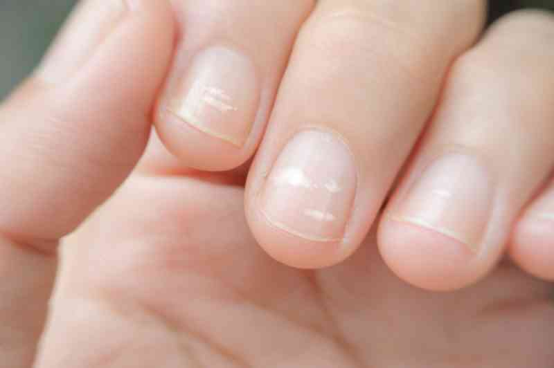 What Does Your Fingernails Indicate About Your Health