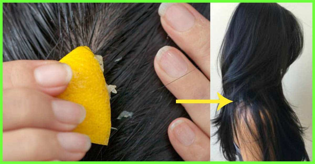 Stepping out for your hair detox? Stay back home and DIY, here's how