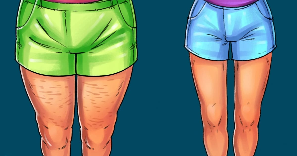 No equipment? Here are some exercises for perfect thighs
